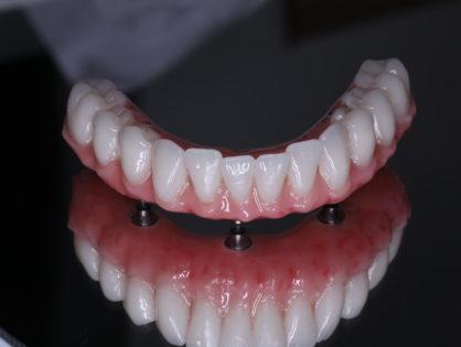 Имплантация зубов по методу Trefoil